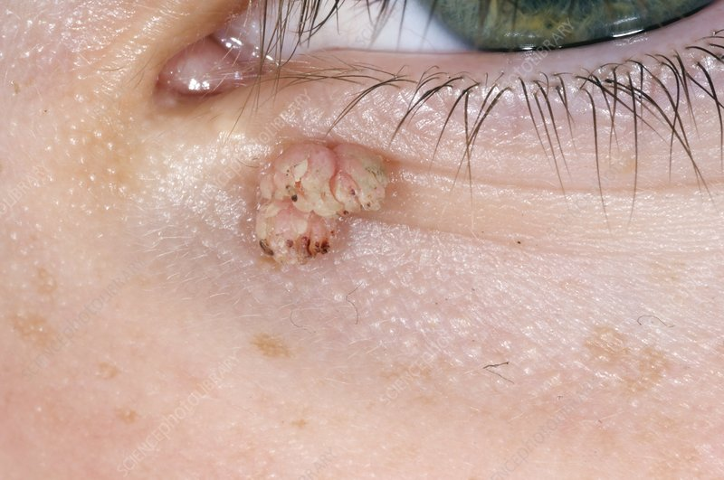 wart eyelid treatment