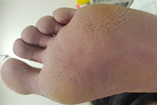wart foot nhs