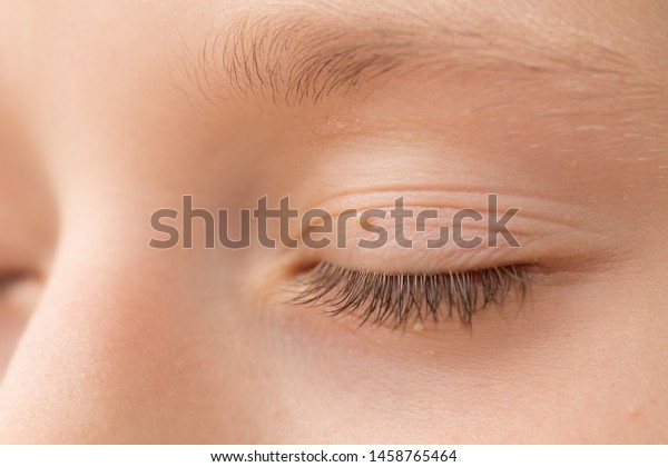 wart on eyelid picture