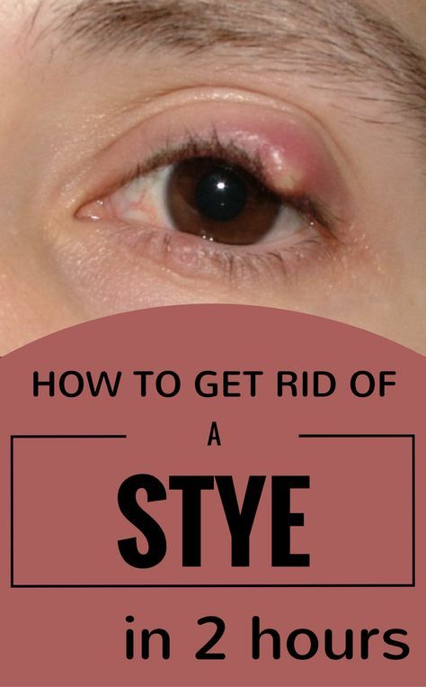 warts on eyelid home treatment