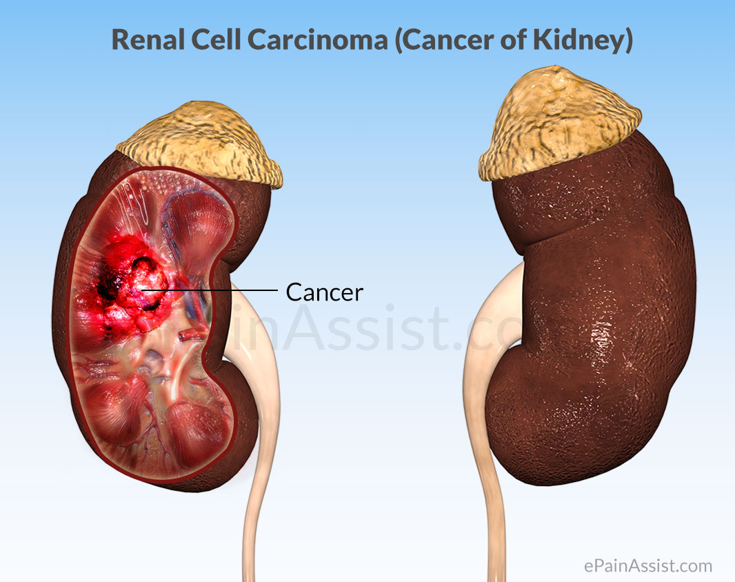 renal cancer causes inverted papilloma types