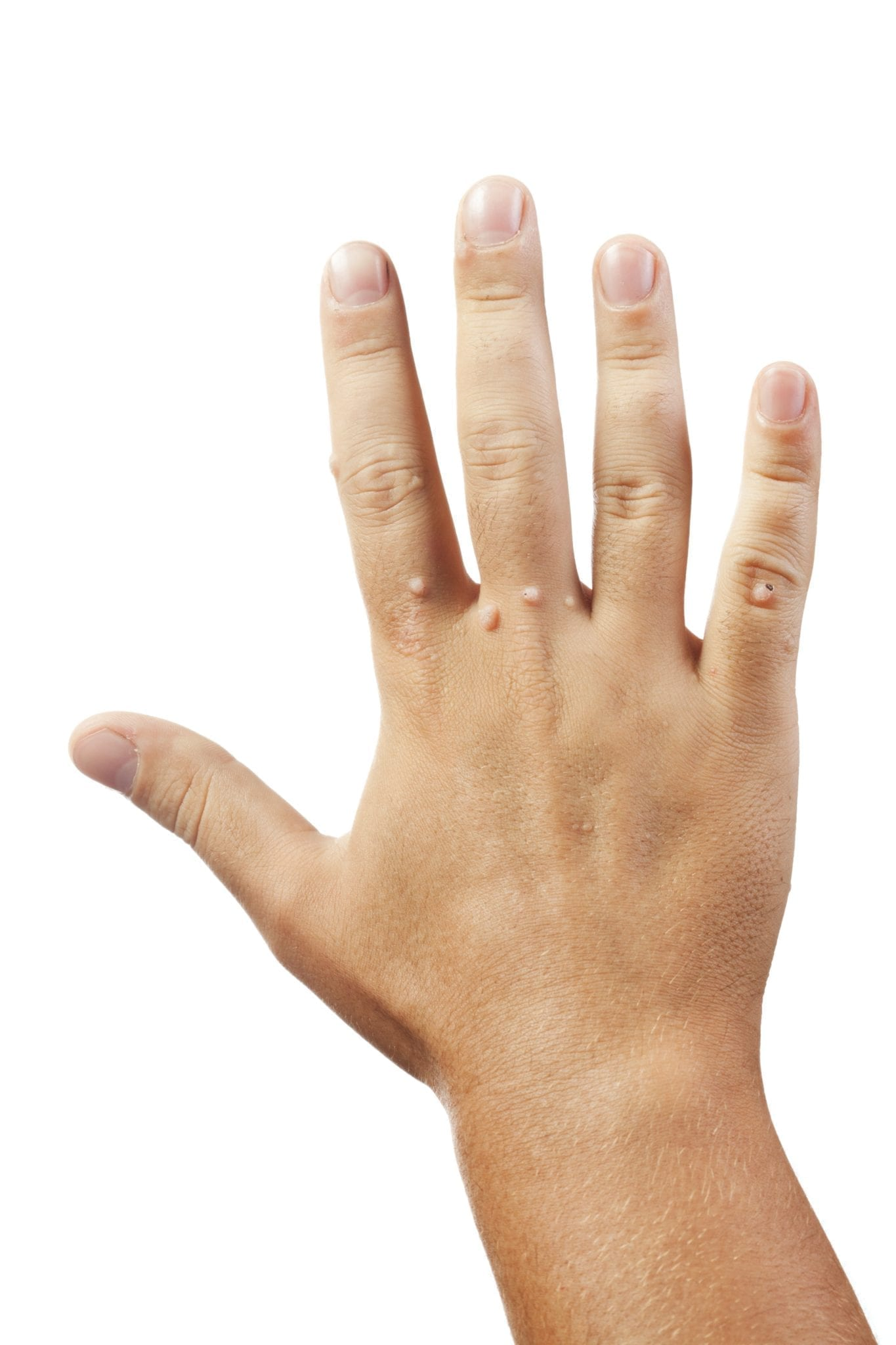How to Get Rid of Warts Naturally