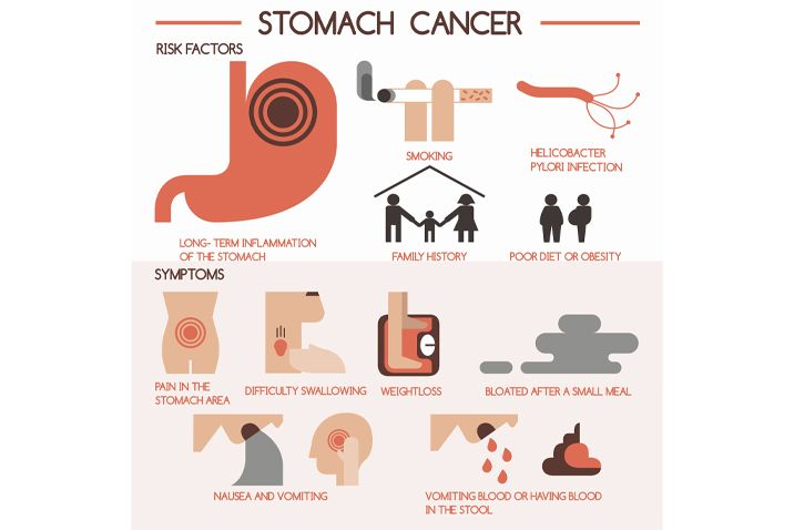 gastric cancer early stage