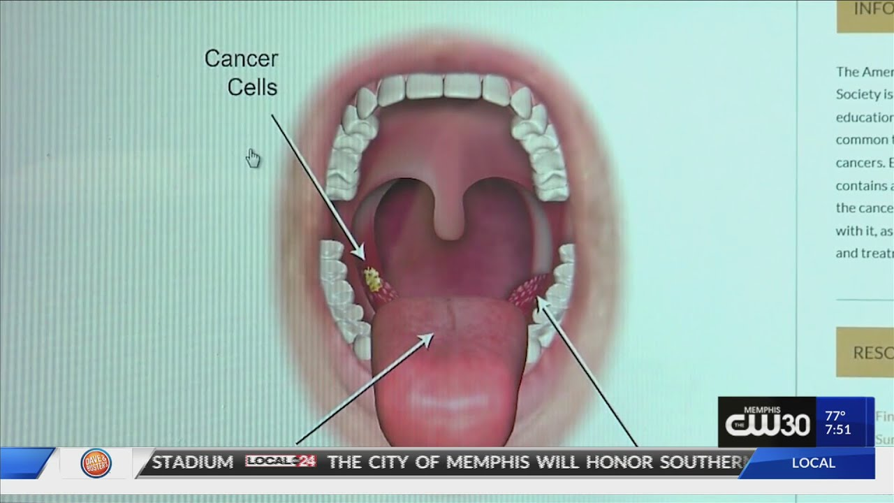 hpv throat cancer images