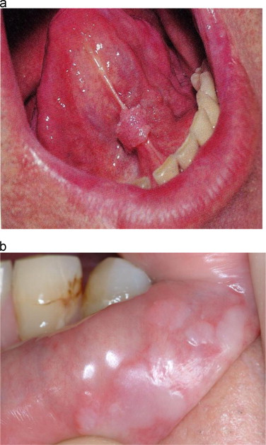 papilloma tongue symptoms