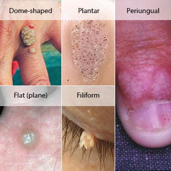 warts on skin pictures