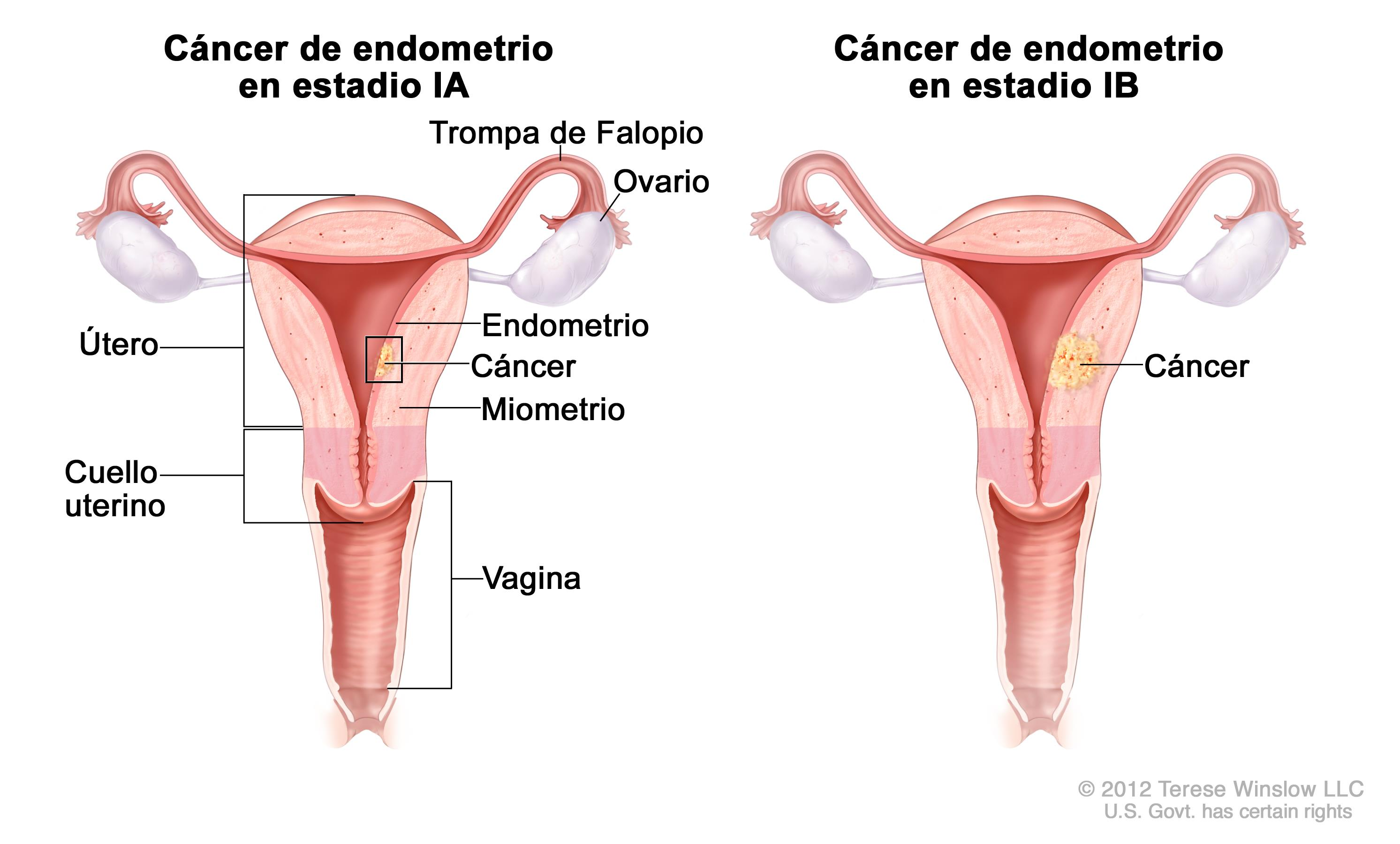 cancer col uterin analize