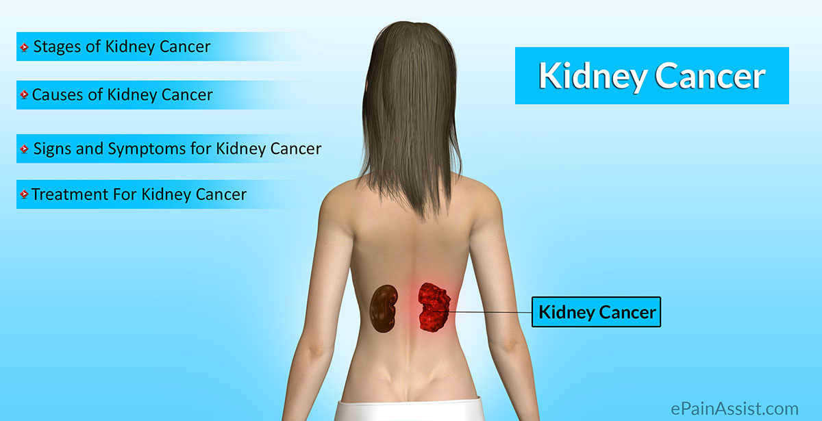 renal cancer causes