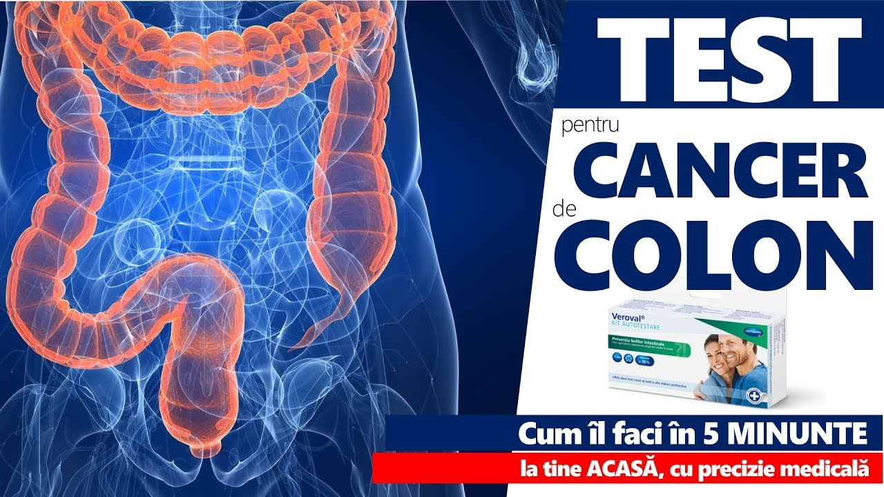 simptome cancer colon barbati