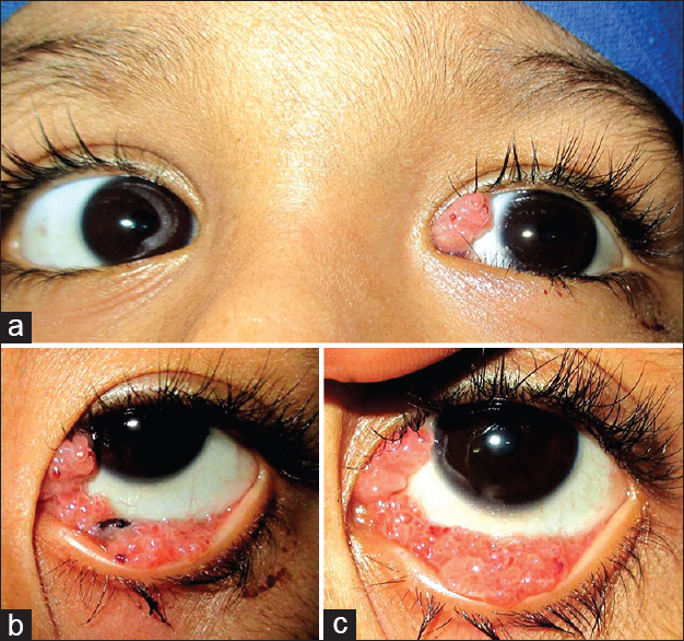 treatment for recurrent conjunctival papilloma